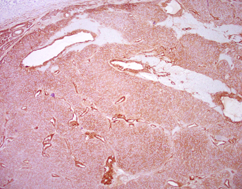 Positive-stain-for-Collagen-IV-at-100x