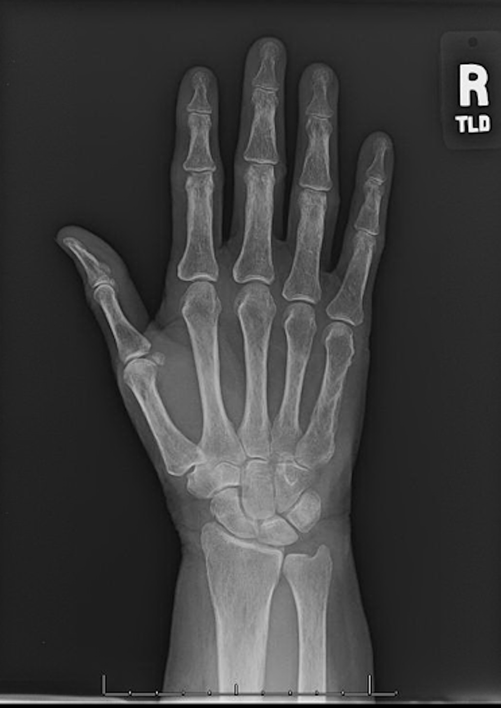Anteroposterior-view-of-the-right-hand