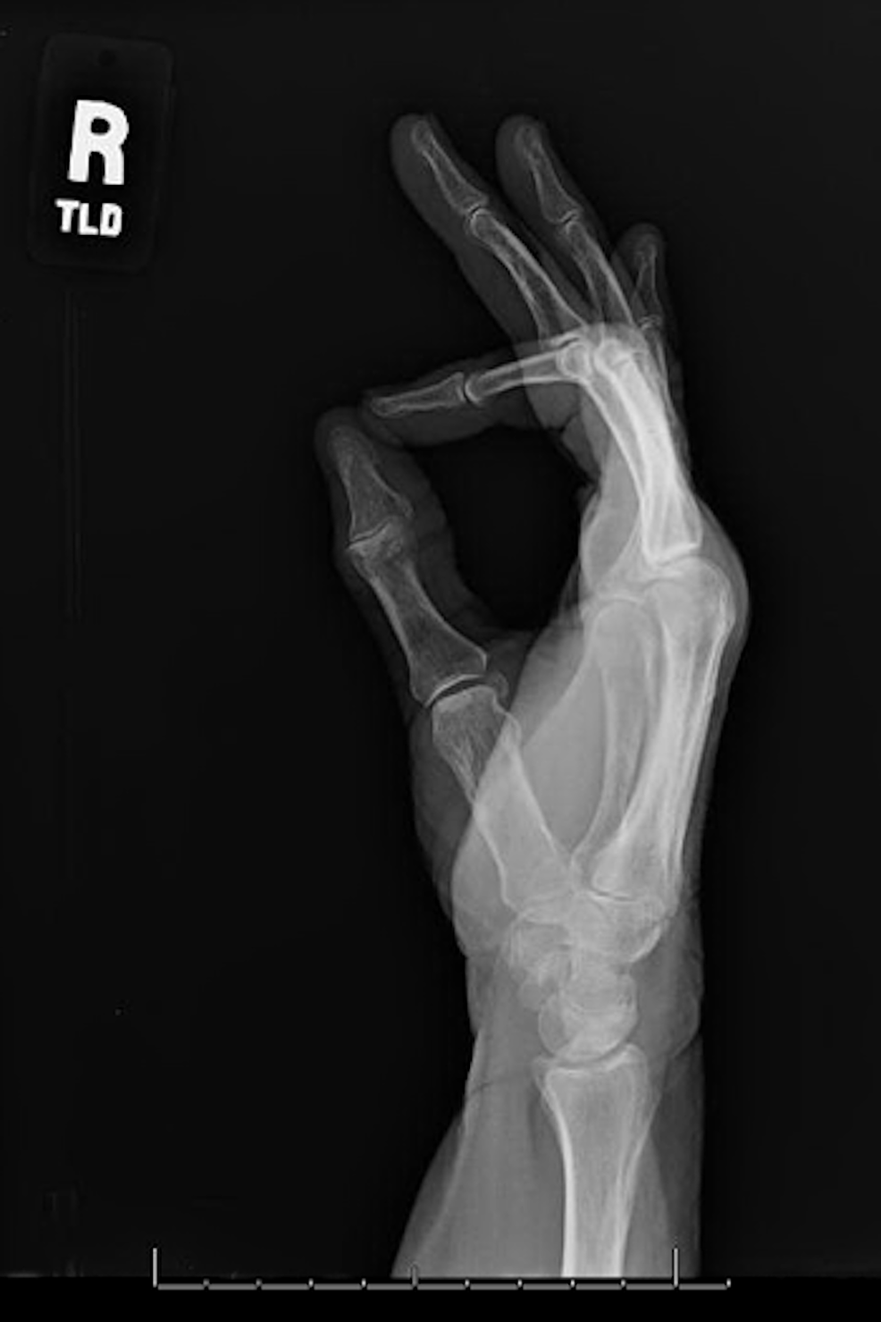 Lateral-view-of-the-right-hand
