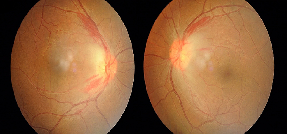 Fundus-photography-of-bilateral-eyes-showing-swollen-and-hyperemic-optic-discs-with-peripapillary-hemorrhages.
