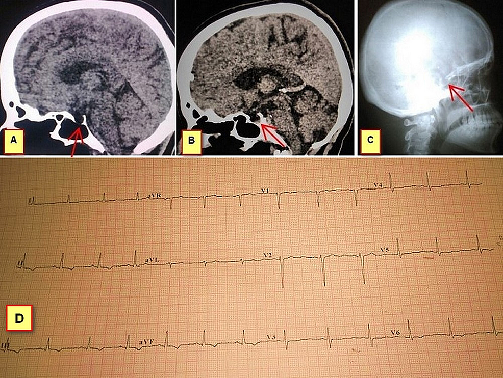 Patient's-CT-images,-skull-radiograph,-and-ECG.