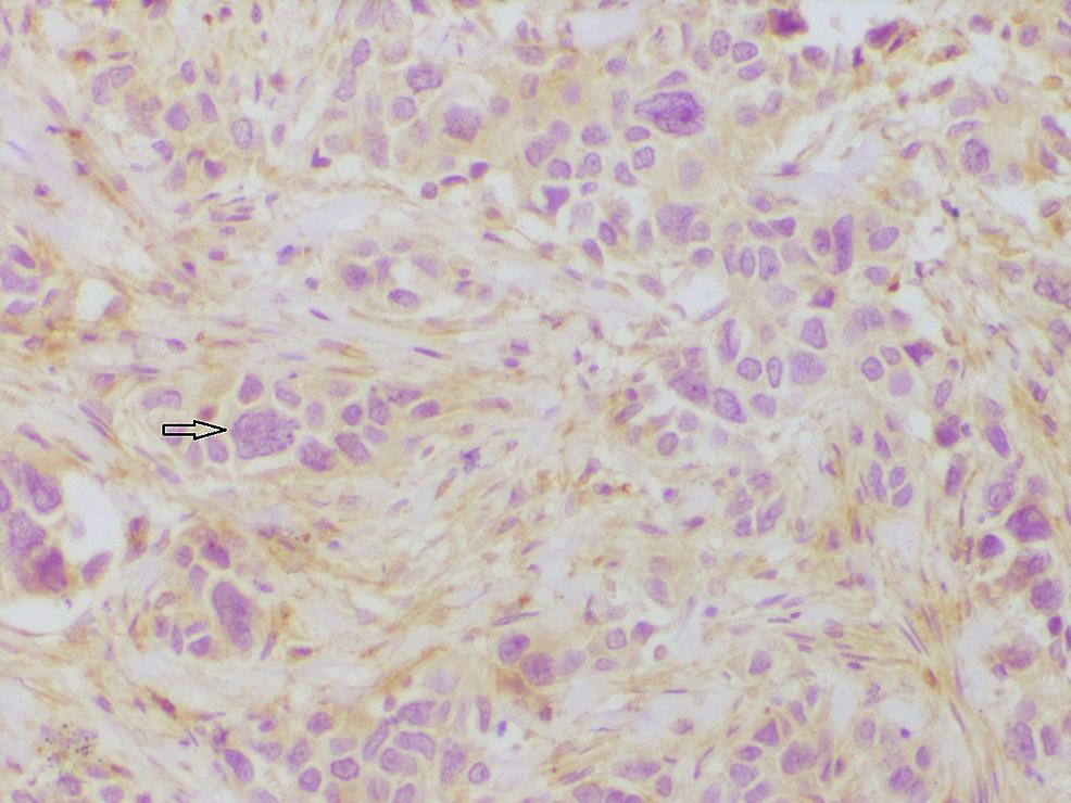 Section-showing-progesterone-receptor-(PR)-negativity