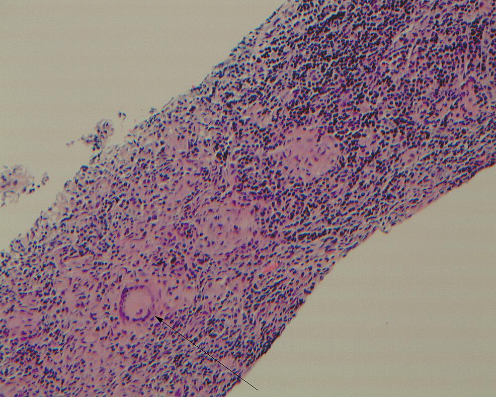 Lymph-node-biopsy-showing-noncaseating-granulomas.-