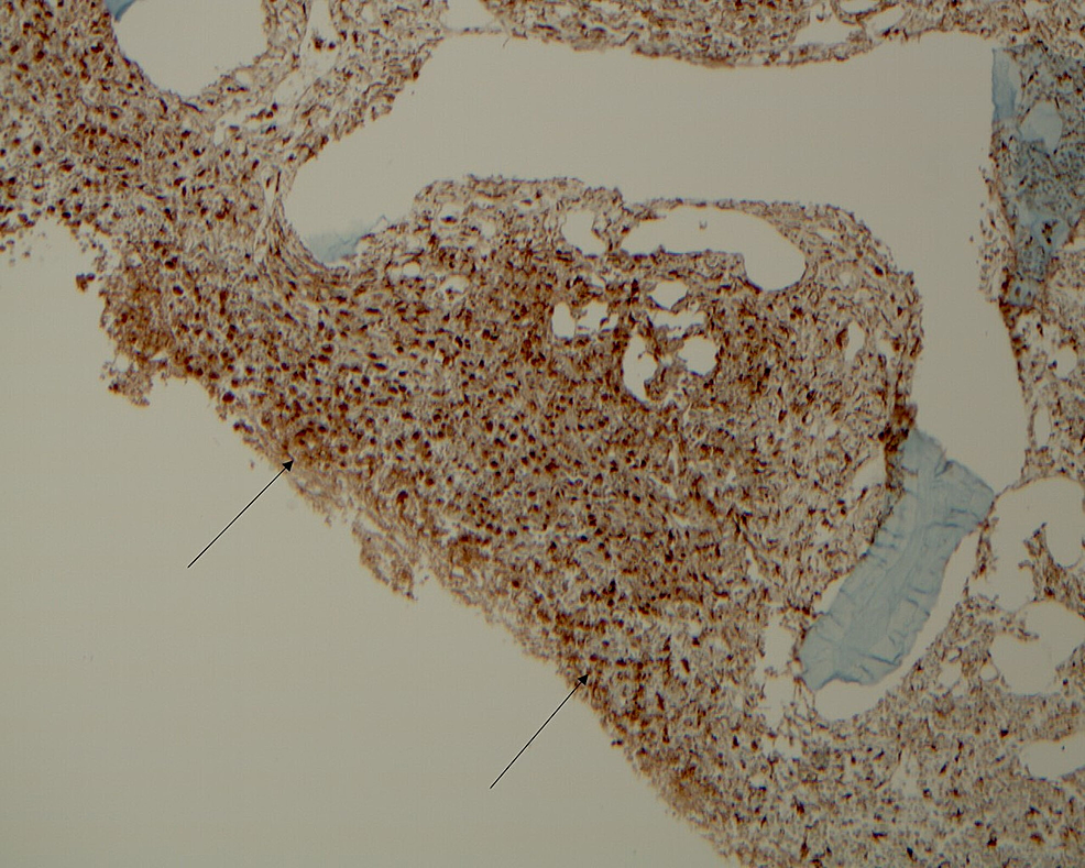 A-bone-marrow-biopsy-showing-diffuse-positive-CD68-indicating-histiocytes.