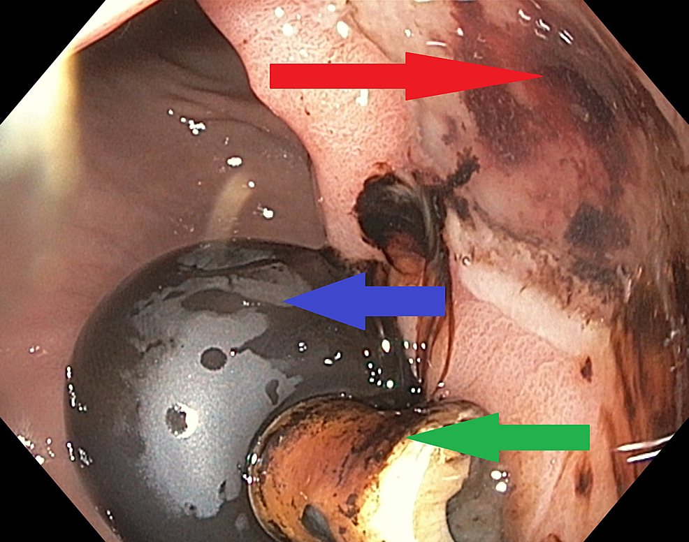 Endoscopic-findings-are-showing-active-clean-base-gastric-ulcer-with-no-high-risk-stigmata-(red-arrow),-also-showing-balloon-(blue-arrow)-and-inner-tip-(green-arrow)-of-the-gastrostomy-tube.