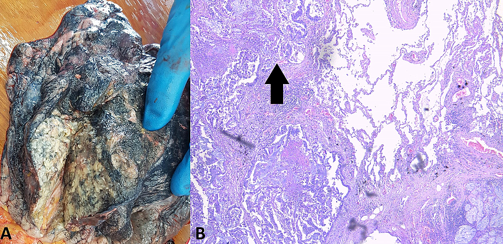 The-largest-lung-lesion.