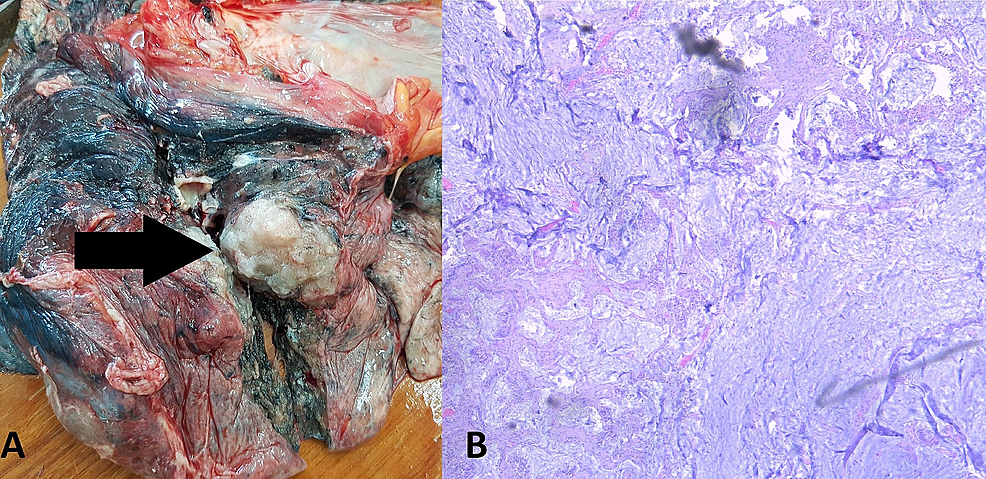 The-lung-lesion-with-distinctive-appearance-when-compared-to-the-other-lung-masses.