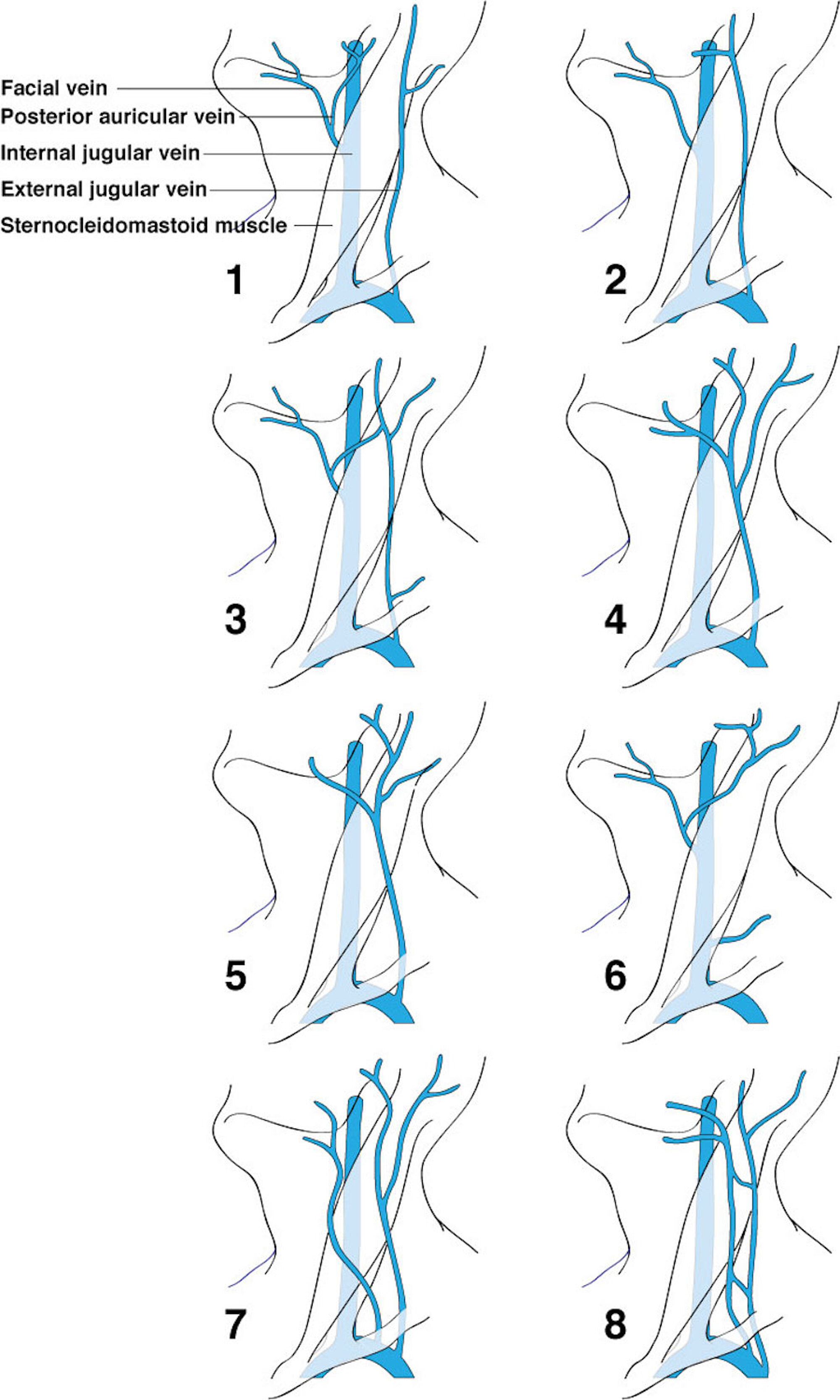 Cureus   Review of the Variations of the Superficial Veins of the Neck