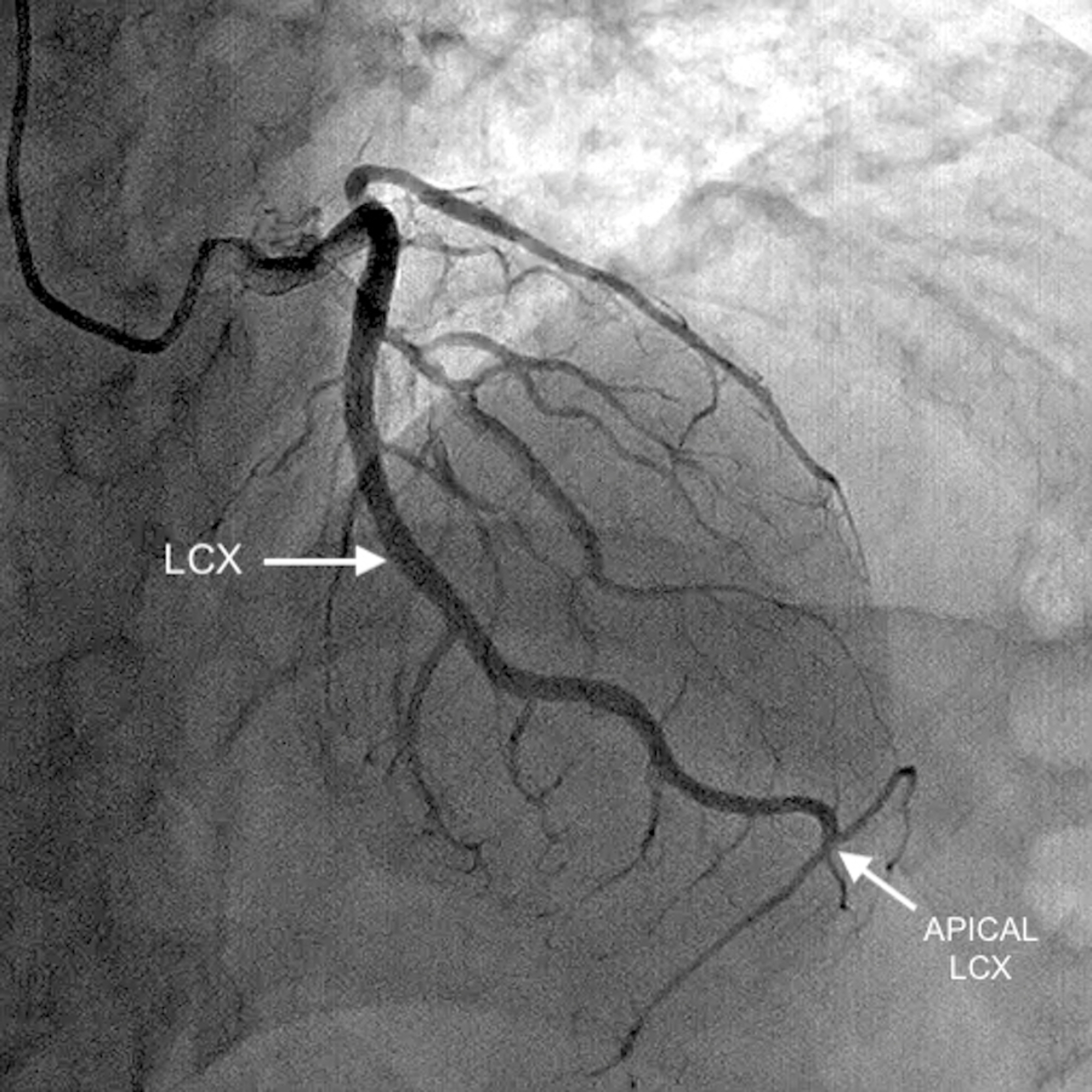 Cureus Anomalous Supradominant Left Circumflex Artery With Rare