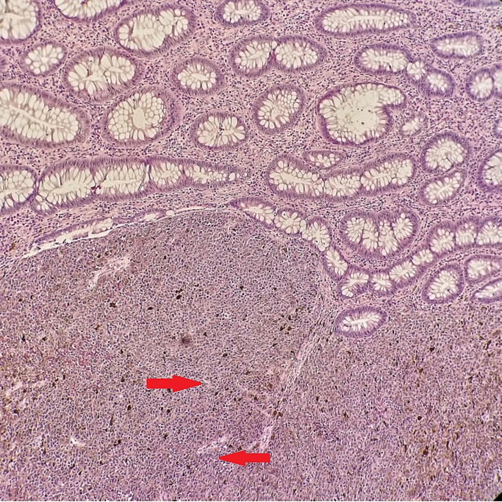 Haematoxylin-and-eosin.