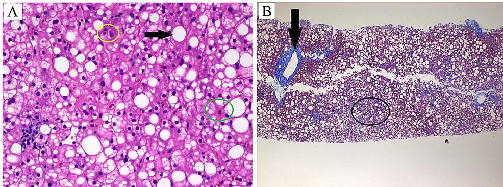 Histopathologic-findings.