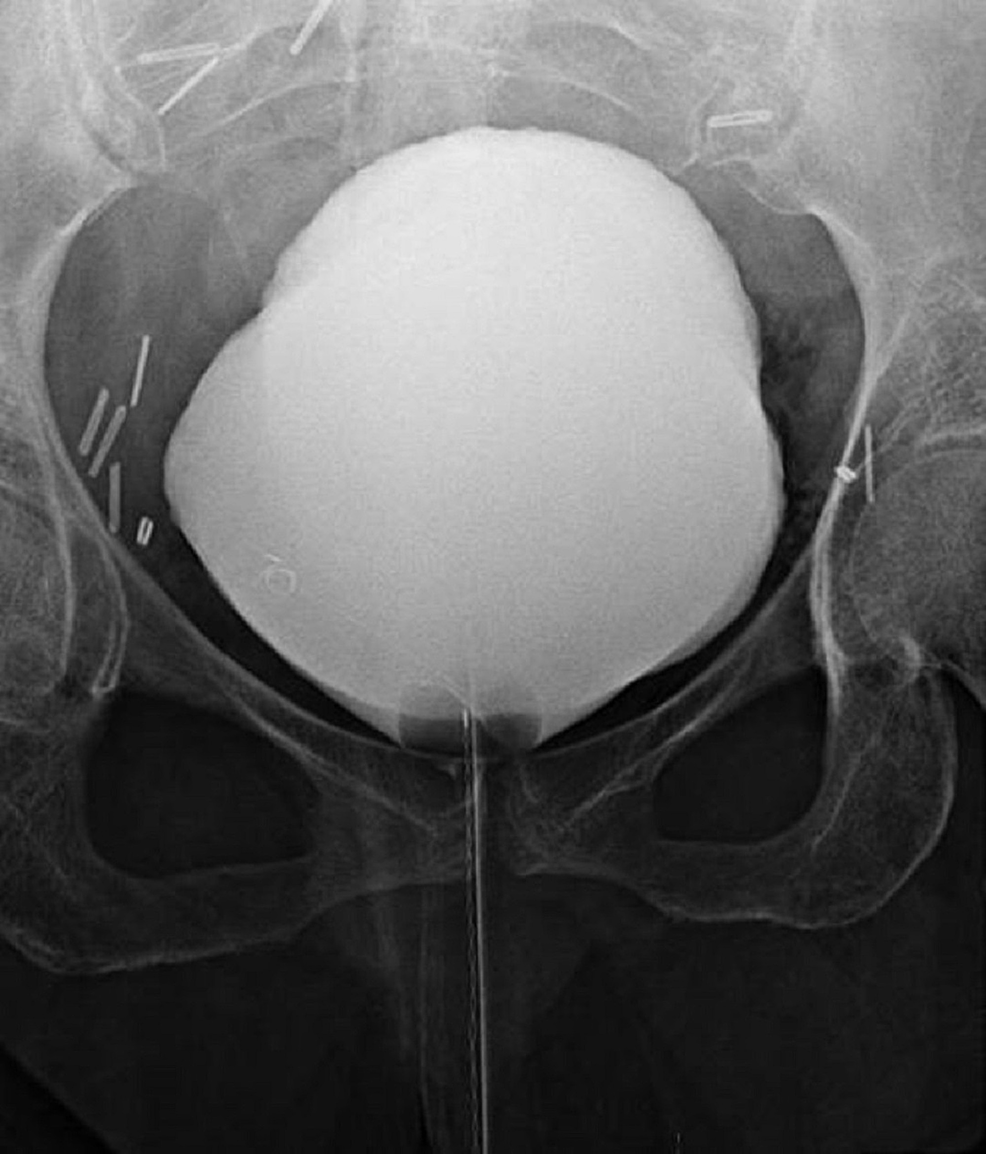 Cystogram-showing-no-evidence-of-contrast-extravasation-from-the-bladder