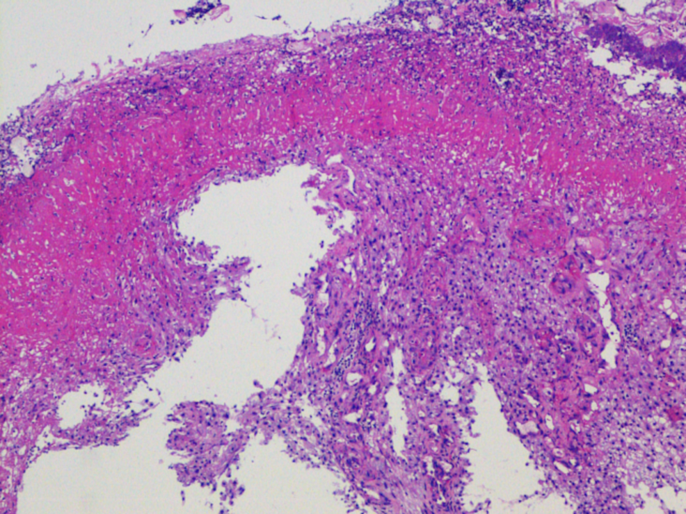 Histopathology-from-esophageal-biopsy-showing-metastatic-clear-cell-renal-cell-carcinoma.