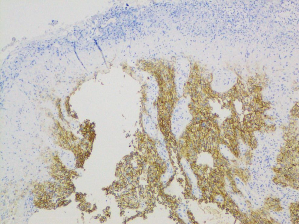 Histopathology-from-esophageal-biopsy-showing-metastatic-clear-cell-renal-cell-carcinoma-using-renal-cell-carcinoma-(RCC)-stain.