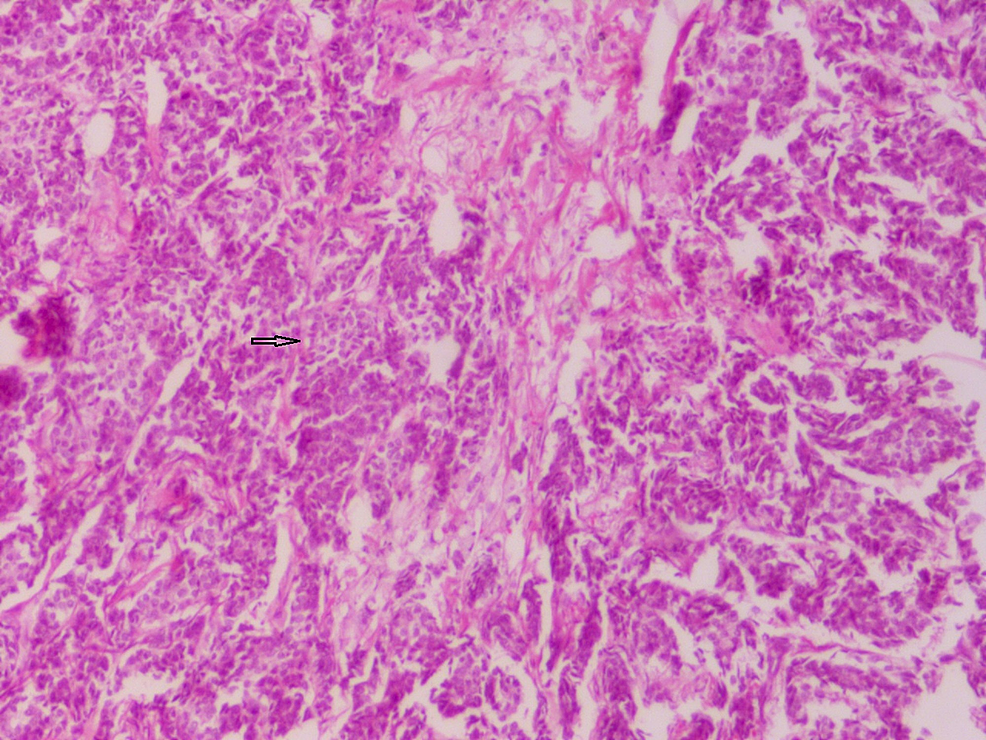 Section-showing-invasive-carcinoma-NST
