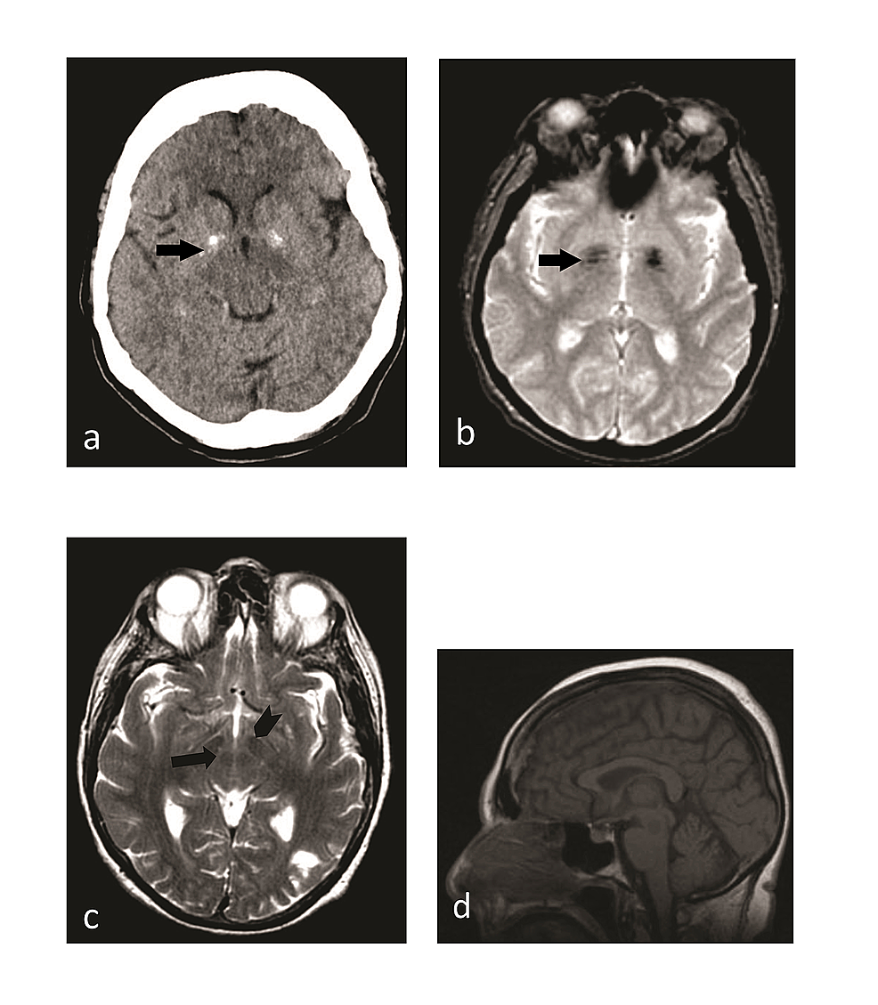 Computed-tomography-(CT)-scan-and-magnetic-resonance-imaging-(MRI)-findings