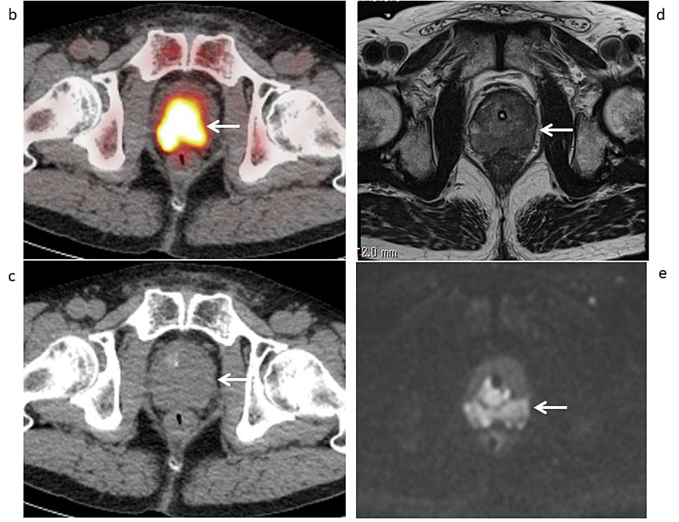 Axial-11C-choline-PET/CT-and-pelvic-MRI-(Case-1)