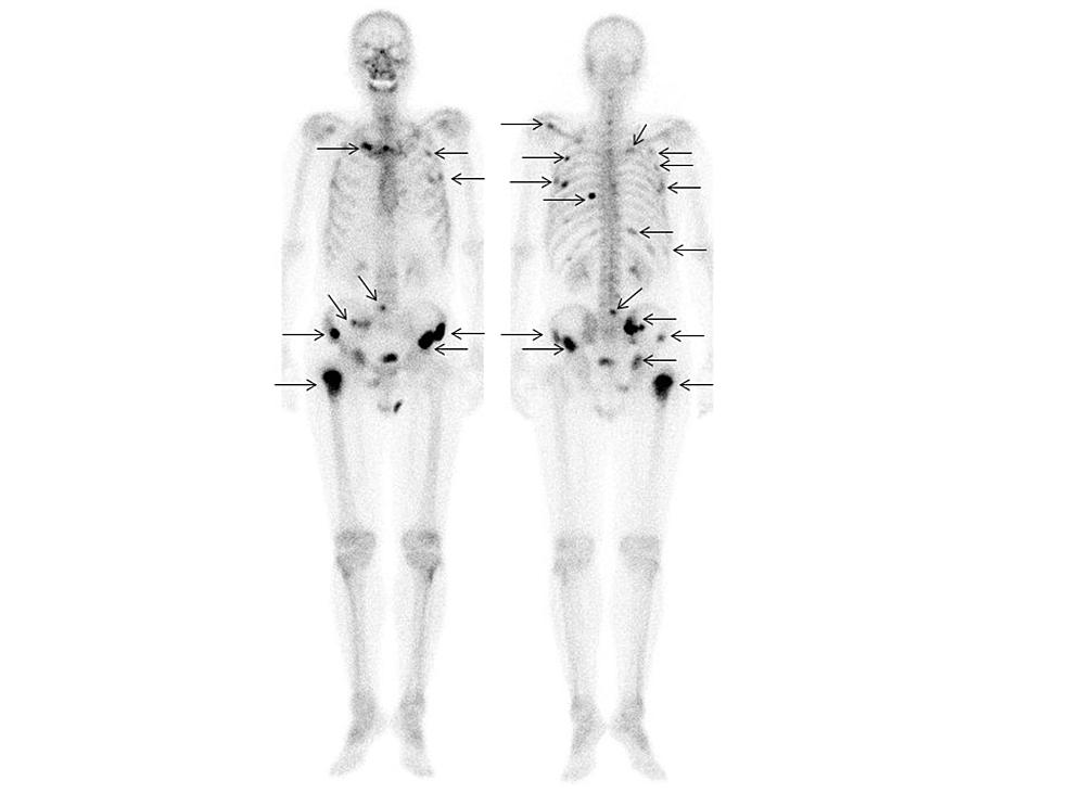 99mMDP-bone-scintigraphy-(Case-2)