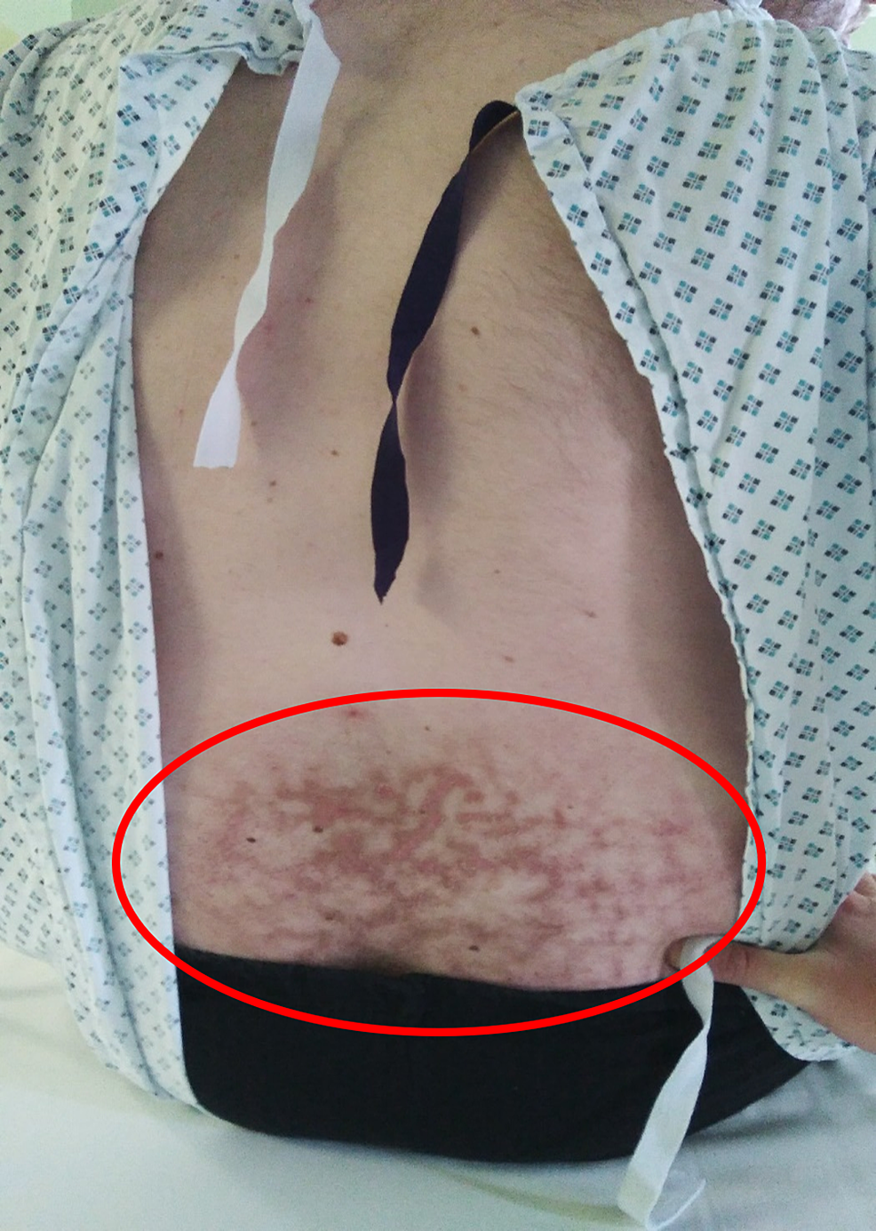 Clinical-example-of-erythema-ab-igne-in-the-lower-back