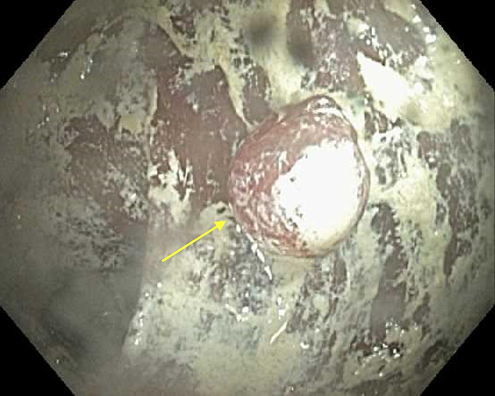 Ascending-colon,-single-polyp.-Unknown-substance.
