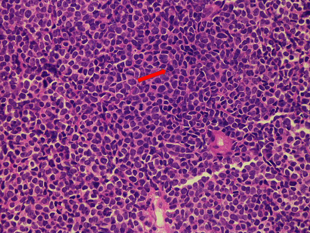 Histological-segment-of-a-lymph-node-illustrated-via-a-hematoxylin-and-eosin-(H&E)-stain