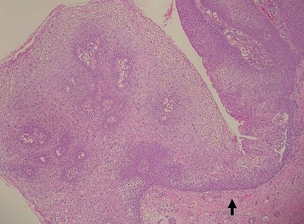 Squamous-epithelial-proliferation-with-the-characteristic-blunt-pushing-deep-margins-(H&E,-20x).
