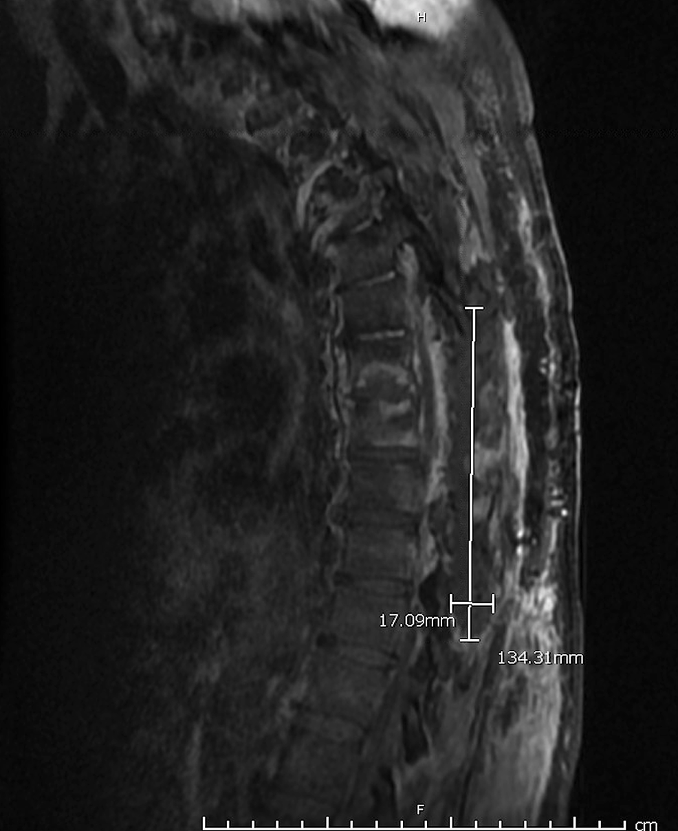 Sagittal-view-of-thoracic-spine-magnetic-resonance-imaging-(MRI).