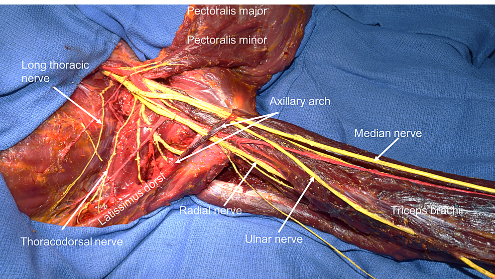Cureus The Role Of The Axillary Arch Variant In Neurovascular