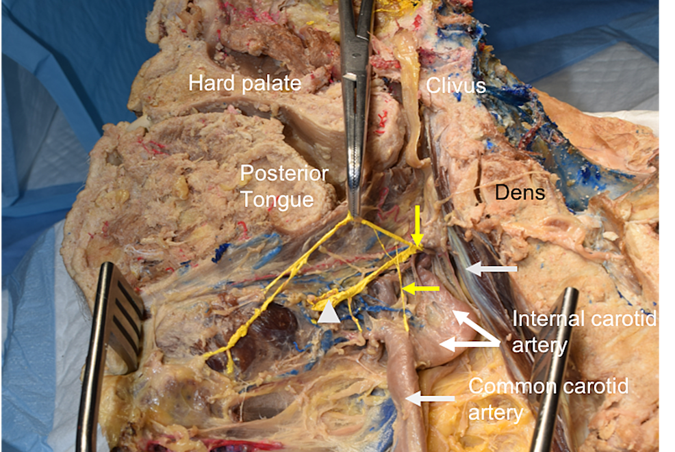 Medial-view-of-the-specimen-reported-here.-Note-the-superior-laryngeal-nerve-(vertical-yellow-arrow),-internal-laryngeal-nerve-(elevated-with-hemostats),-and-internal-laryngeal-nerve-(white-arrowhead).