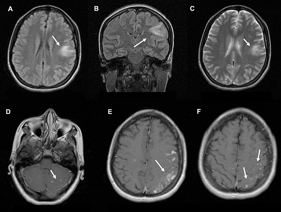 Case-magnetic-resonance-image-(MRI)