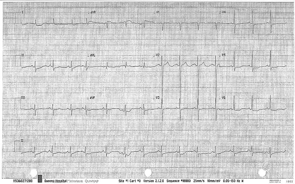 Left-ventricular-hypertrophy
