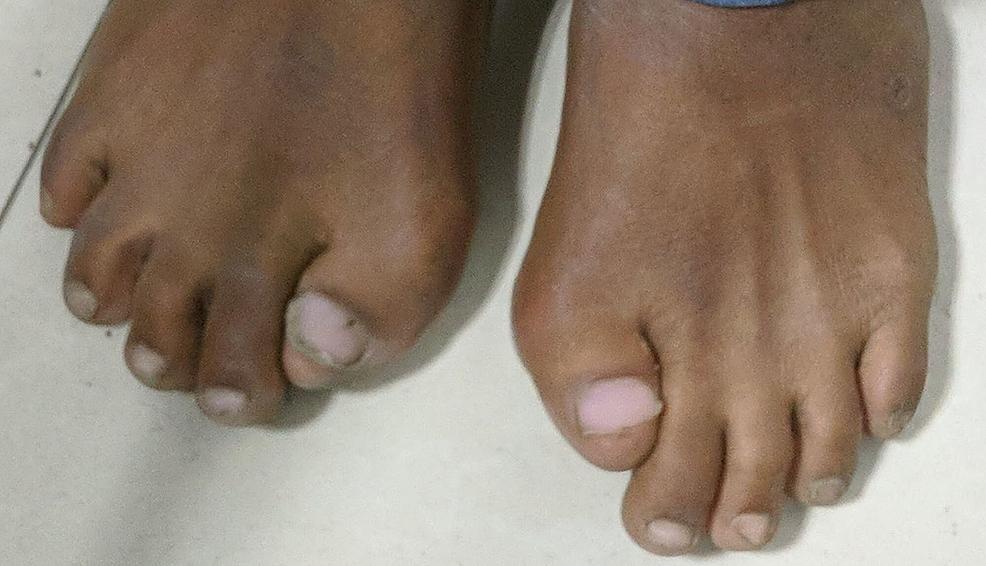 Clinical-photograph-of-bilateral-feet.