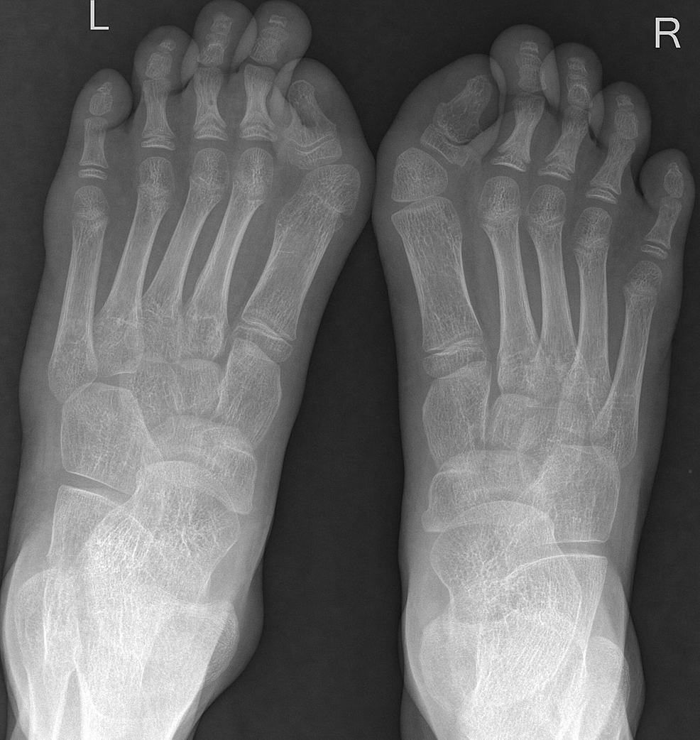 Plain-radiograph-of-both-foot-–-anteroposterior-view.