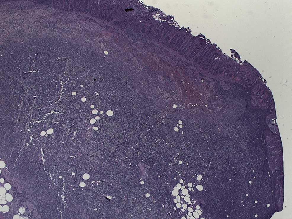 Pathology-from-resected-colon-showing-surface-erosion-and-friability.