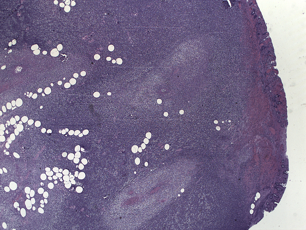 Pathology-with-spherical-areas-of-necrosis-representing-abscess-formation.