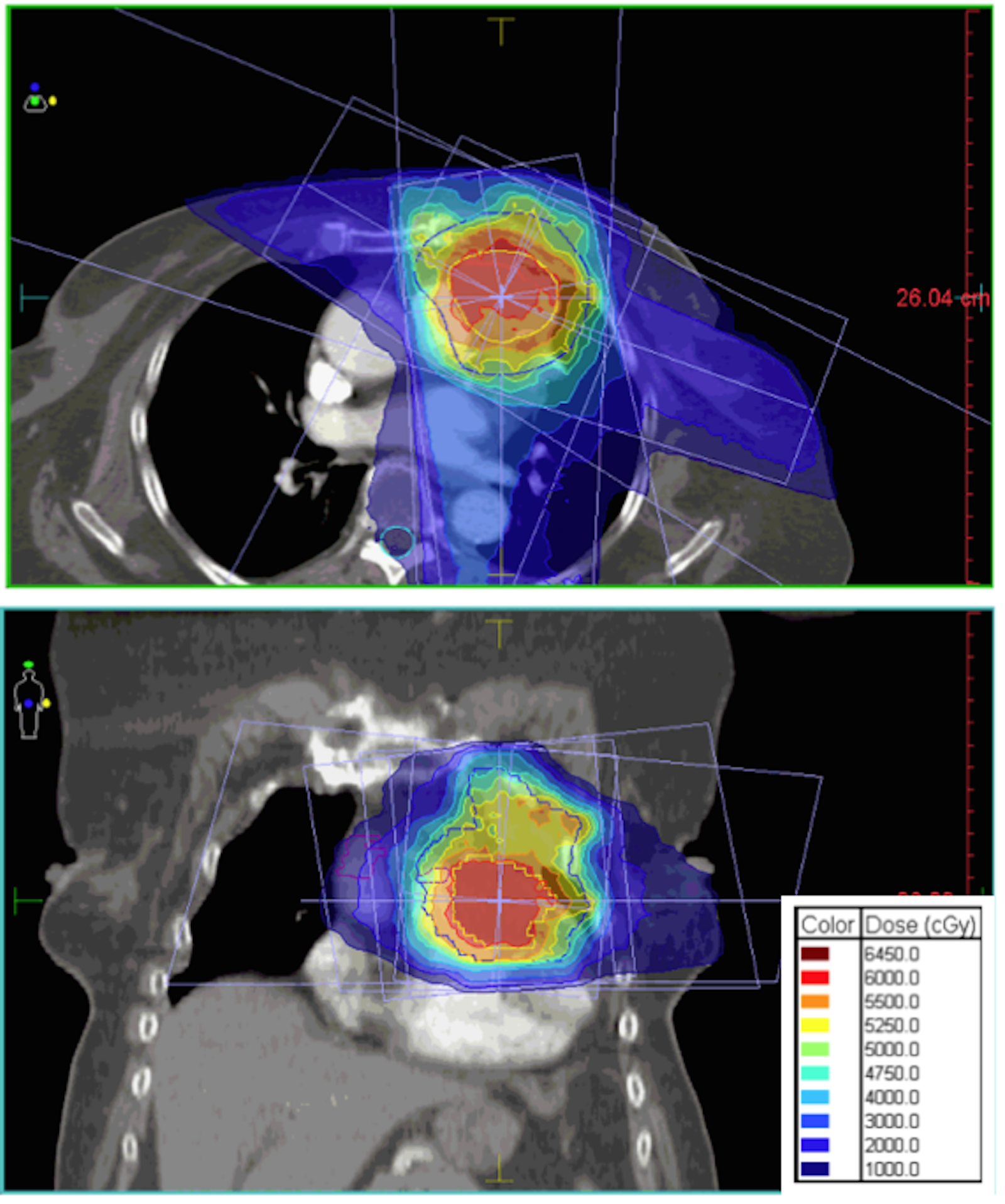 Cureus Successful Salvage Radiotherapy For A Chemo