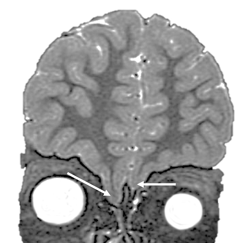 Coronal-MRI-illustrating-extensive-downward-sloping-of-brain-tissue-(frontal-lobes)-through-the-cribriform-plate
