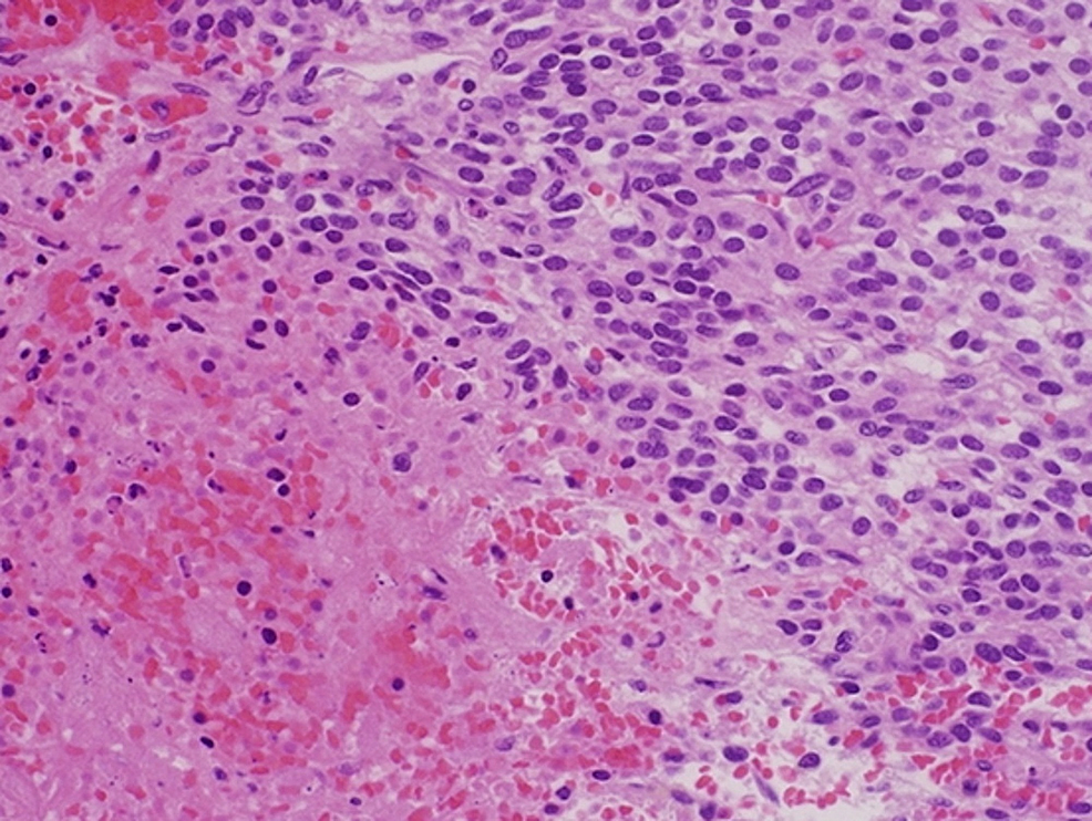 Histopathology-of-the-excised-cardiac-tumor-showing-polygonal-cells-with-prominent-nuclei-and-surrounding-vascular-structures