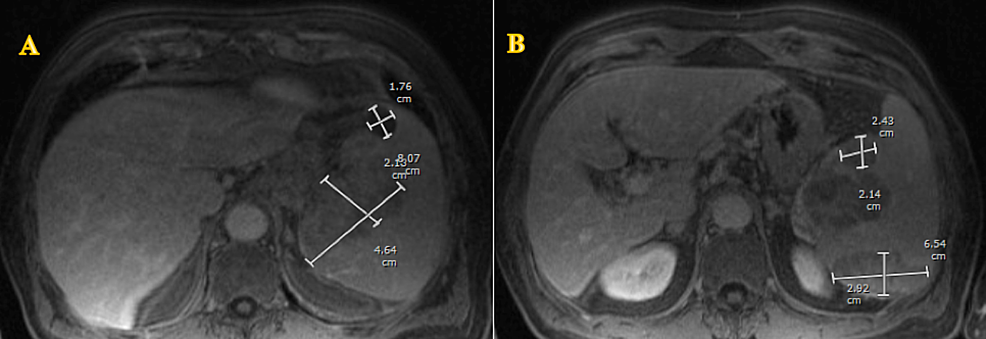 (A-&-B)-Magnetic-resonance-imaging-(MRI)-of-the-abdomen-showing-splenomegaly-with-multiple-hypoenhanced-lobulated-masses.
