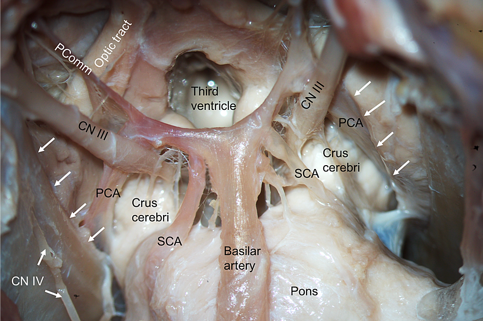 Inferior-view-of-the-basal-brain-and-associated-neurovascular-structures.