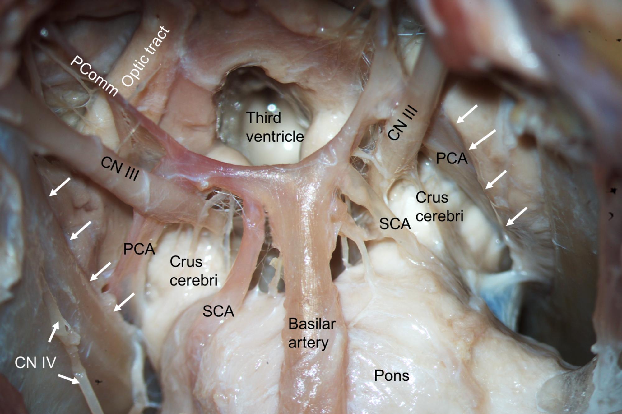 Cureus Superior Cerebellar Arteries Originating From The Posterior