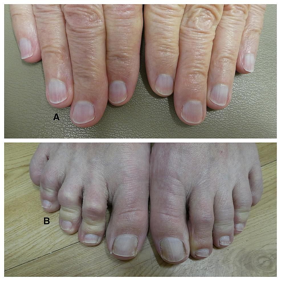 Congenital-leukonychia-of-the-fingernails-and-toenails