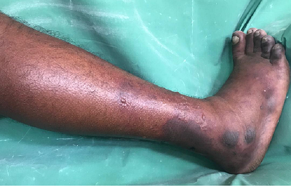 Right-leg-with-swelling-below-the-level-of-knee-and-blackish-discoloration-of-toes-and-lower-third-of-the-leg