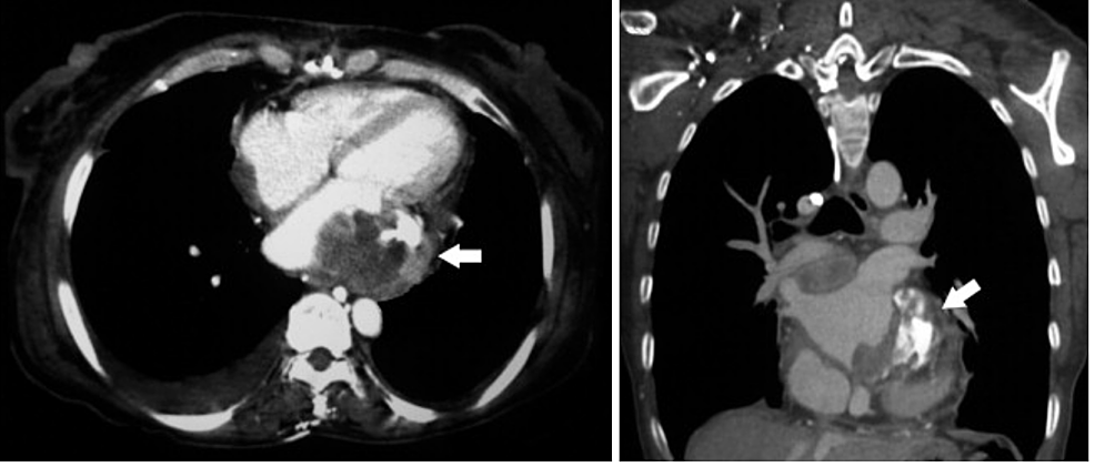 Thoracic-computed-tomography-(CT)-showing-an-irregular-left-atrial-mass-(arrow)-attached-to-the-posterior-wall
