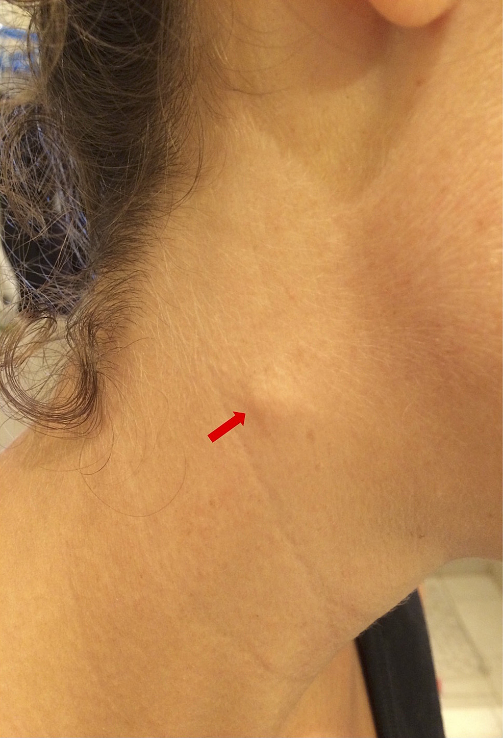 Swelling-on-the-right-sternocleidomastoid-muscle,-midway-along-its-anterior-border.-The-swelling-was-about-0.75-cm-in-length-x-0.5-cm-in-width.