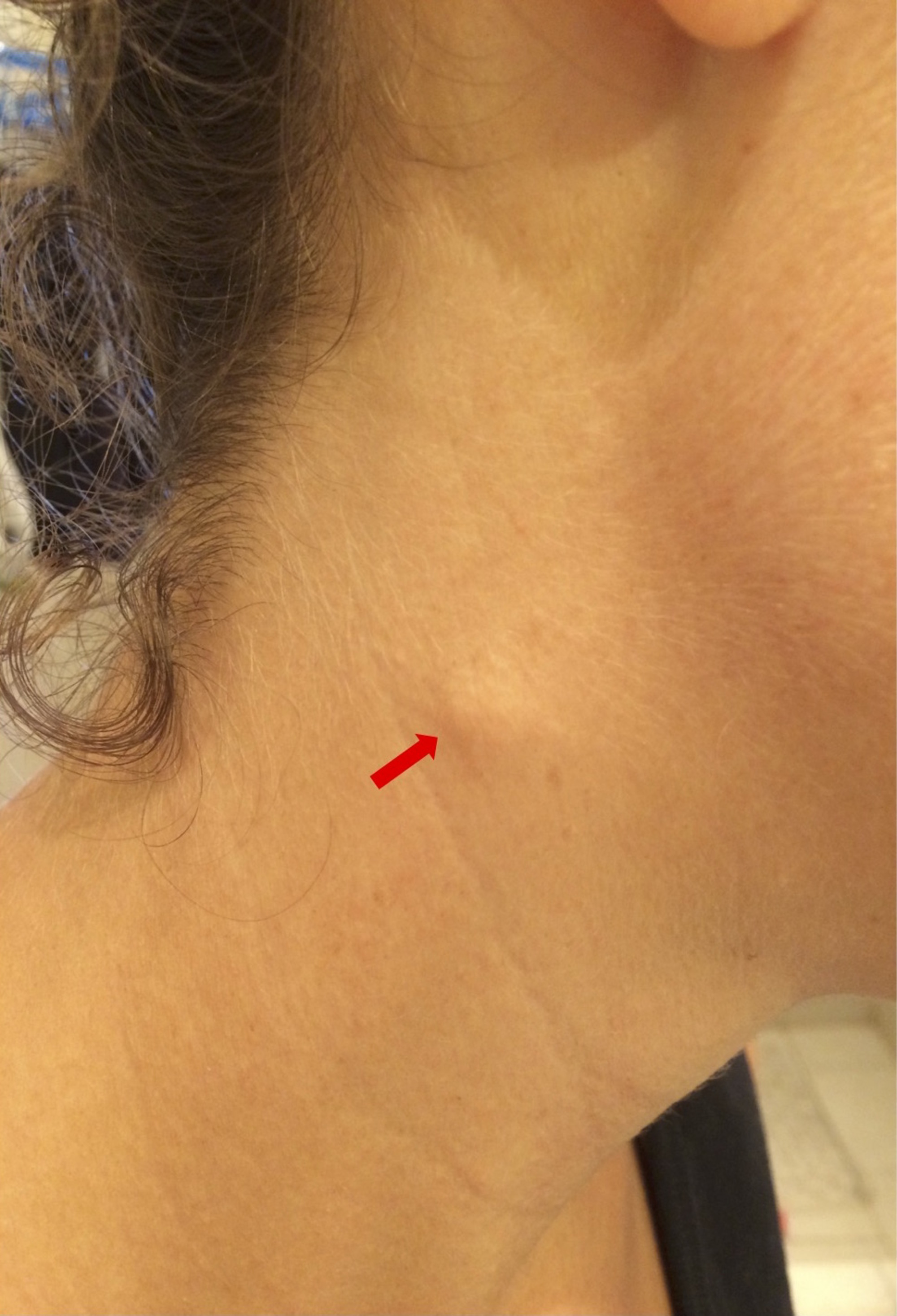 Swelling On The Right Sternocleidomastoid Muscle Midway Along