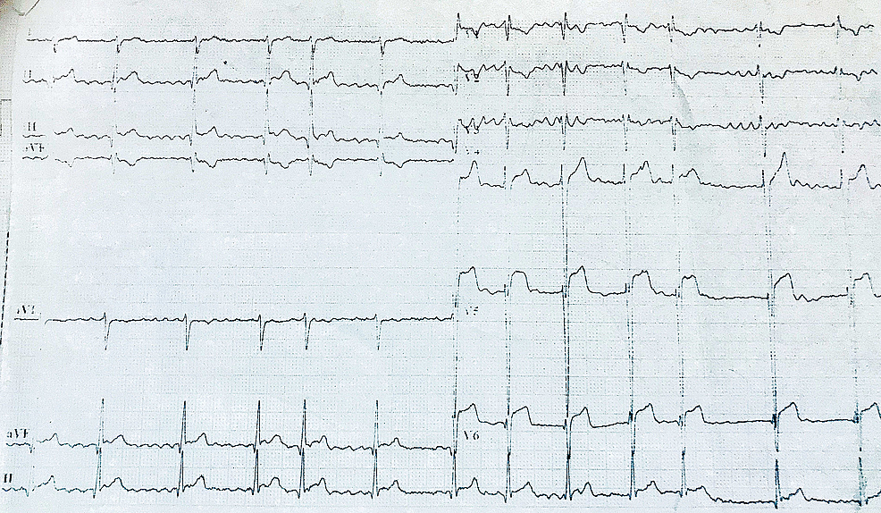 Electrocardiogram-showing-atrial-fibrillation-with-normal-ventricular-rate-and-ST-elevation-from-V4-to-V6