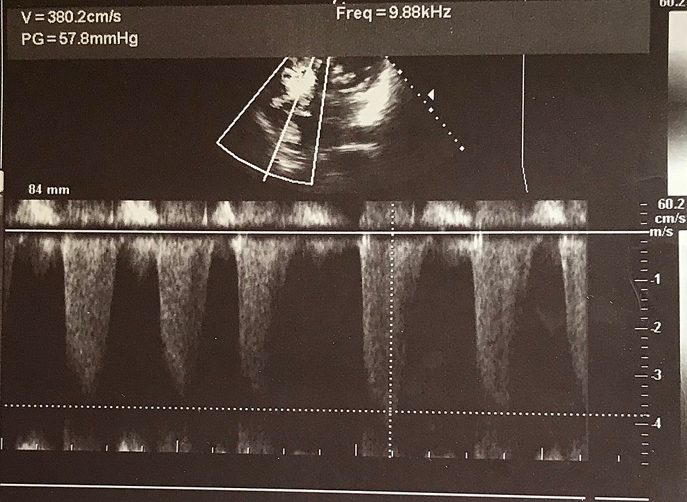 Transthoracic-echocardiogram-in-four-chamber-view-with-continuous-wave-(CW)-mode-showing-severe-tricuspid-regurgitation-with-a-pressure-gradient-of-57.8-mmHg