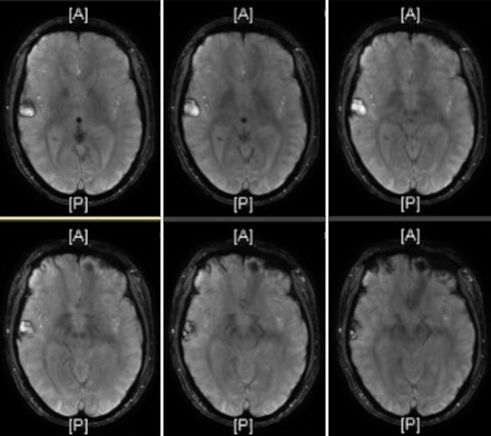 T1-weighted-magnetic-resonance-imaging-(MRI)-showed-several-acute-and-subacute-cerebral-contusions-within-the-right-frontotemporal-region-with-progression-of-the-temporal-lobe-contusion.