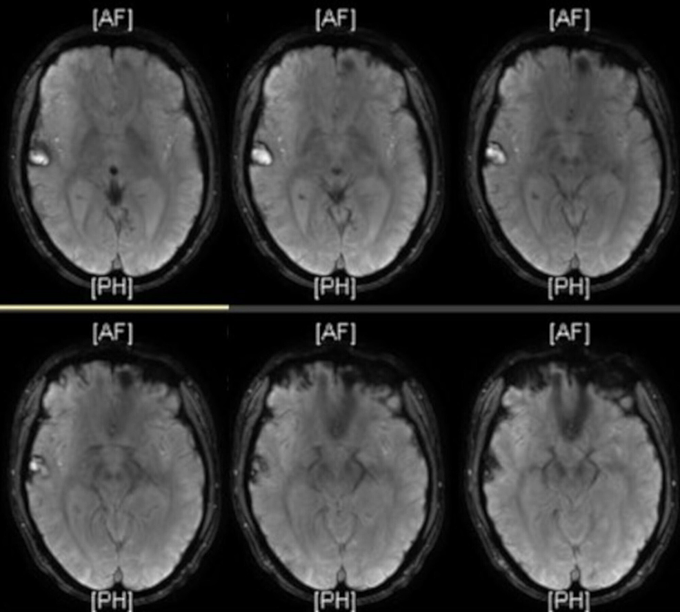 T1-weighted-brain-MRI-revealed-a-persistent-dominant-focus-in-the-right-temporal-region-that-was-well-demarcated-and-stable-in-size.-It-showed-resolving-white-matter-edema-and-improving-post-traumatic-foci-of-altered-signal-intensity-when-compared-with-prior-imaging.